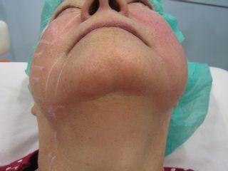 Rejuvenecimiento Facial Dr. Beltrán