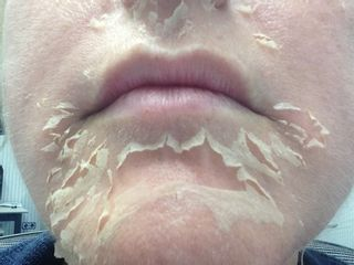 Peeling Quimico Rejuvenecimiento Facial