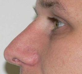 Nasenkorrektur, Profilkorrektur
