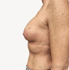 Bruststraffung mit Implantat