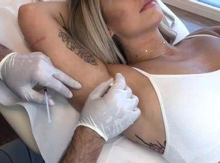Behandlung von übermäßigem Schwitzen bei Dr. Rolf Bartsch