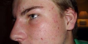 Akne - Hautproblem nicht nur der jungen Haut