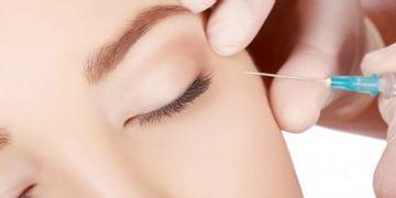 Frotox - die Alternative zu Botox