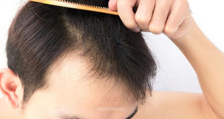 Gute Gründe für eine Haartransplantationen in der Türkei