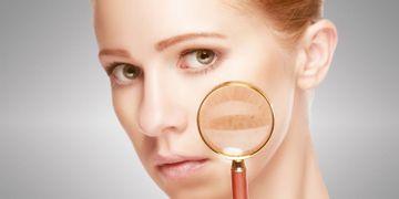 Laser Skin Resurfacing bei hyperpigmentierter und gealterter Haut