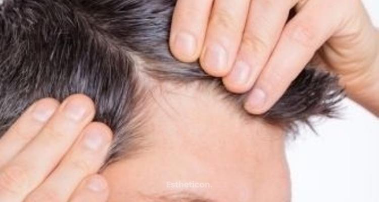 Microhaarpigmentierung mit der VHD Methode –  die neue Hoffnung auf ein optisch dichteres Haar