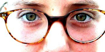 Nasenverkleinerung – Hilfe bei einer zu groß wirkenden Nase