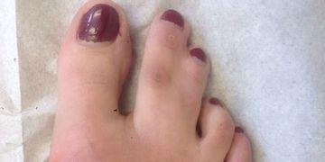 Problem der zusammengewachsenen Zehen (Syndaktylie)