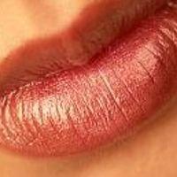 Sollte man die Lippen mit Hyaluronsäure, oder Botox vergrößern?