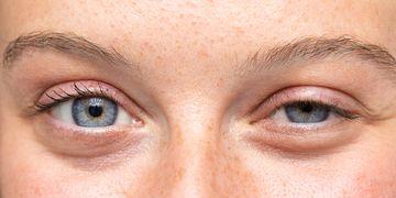 Wenn die Augenpartie an Frische verliert