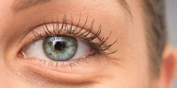 Wirksam Augenringe entfernen - Blepharoplastik, Laser oder Hyaluronsäure?