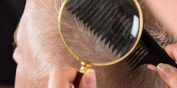 Wie verläuft die Heilung nach einer Haartransplantation?