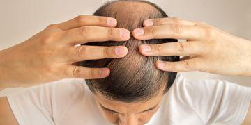 Was Sie über Haartransplantation wissen müssen