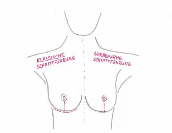 Narbenarme Brustverkleinerung