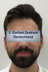 Earfold-Otopexie