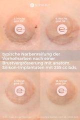 Narben periareolär im Verlauf nach einer ästhetischen Brustvergrösserung