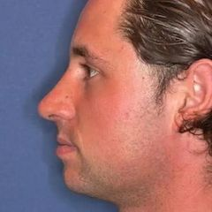 Nasenkorrektur - Rhinoplastik