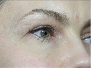 Hyaluron-Unterspritzung der Tränenrinne