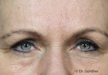 Botox-Behandlung der Zornesfalte