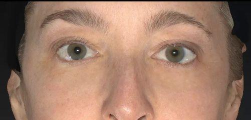Juvederm gegen Augenringe / Tränenrinne