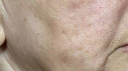 Laser gegen Aknenarben