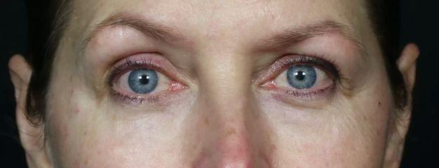 Tränenrinnen-Unterspritzung mit Hyaluron