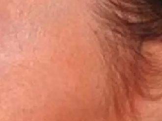 Botox - 779295