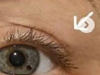 Augenlidstraffung - 779344