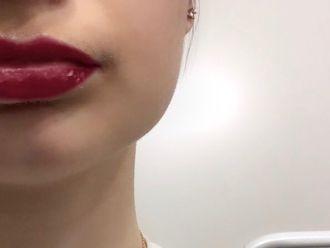 Lippen aufspritzen - 781553