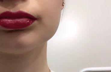 Dauerhafte Lippenvergrößerung