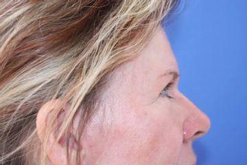 Lidstraffung (Blepharoplastik)