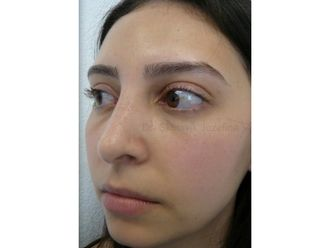 Nasenkorrektur - 795380