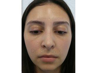 Nasenkorrektur - 795381