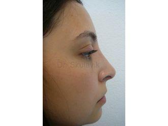 Nasenkorrektur - 795382
