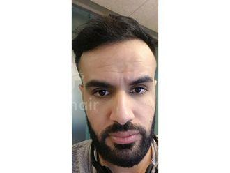 Haartransplantation - 786865