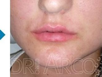 Lippen aufspritzen - 782130