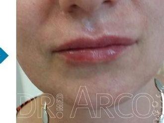 Lippen aufspritzen - 782138