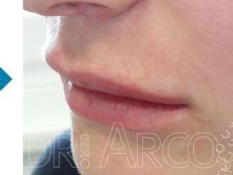 Lippen aufspritzen - 782140