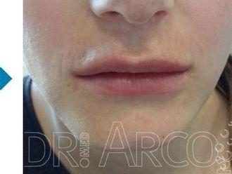 Lippen aufspritzen - 782142