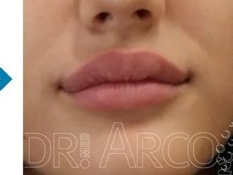 Lippen aufspritzen - 782144