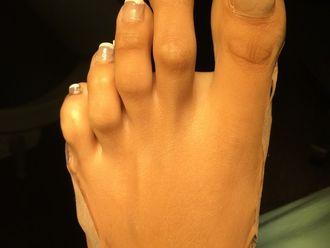 Fußchirurgie - 779405