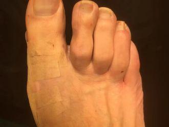 Fußchirurgie - 779406