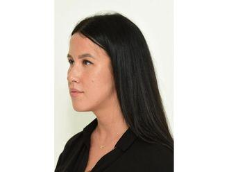 Nasenkorrektur ohne OP - 799166
