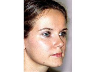Nasenkorrektur ohne OP - 799167