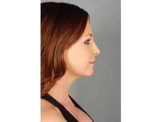 Nasenkorrektur ohne OP - 799169
