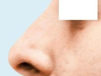 Nasenkorrektur ohne OP - 783586