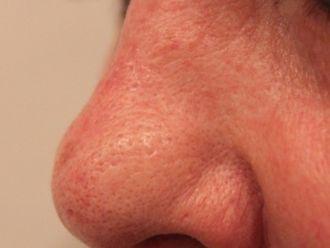 Nasenkorrektur ohne OP - 783594