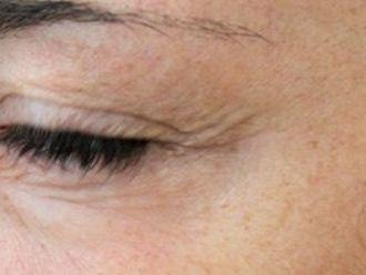 Botox - 783599