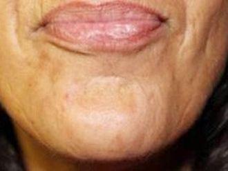 Botox - 783606