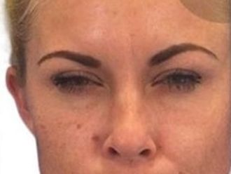 Botox - 778967